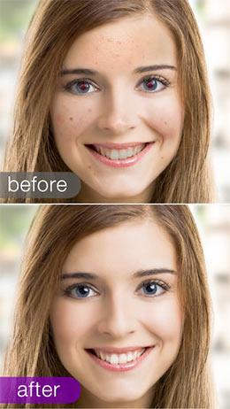 تطبيق فيزاج لاب visage lab
